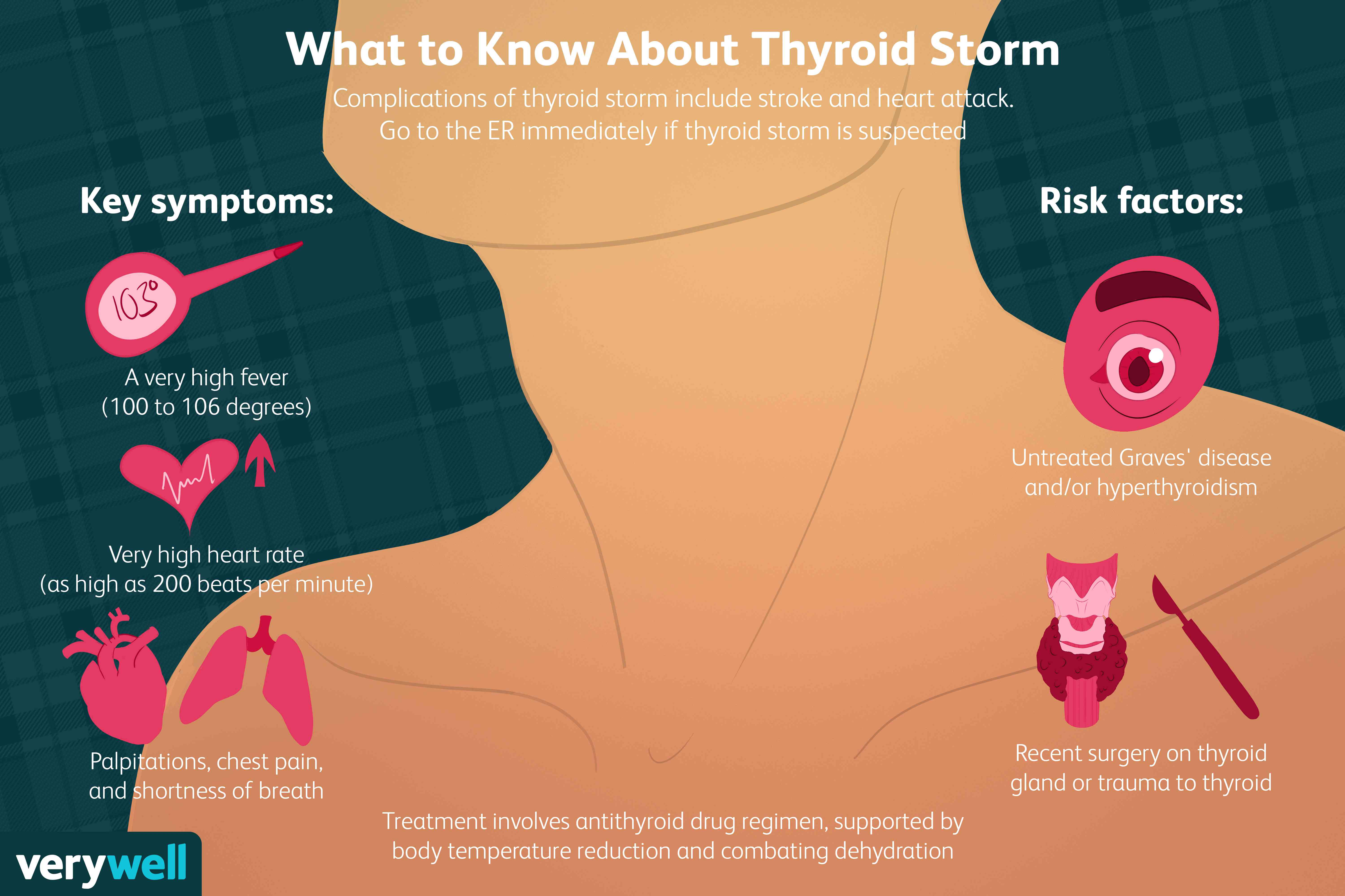what to know about thyroid storm