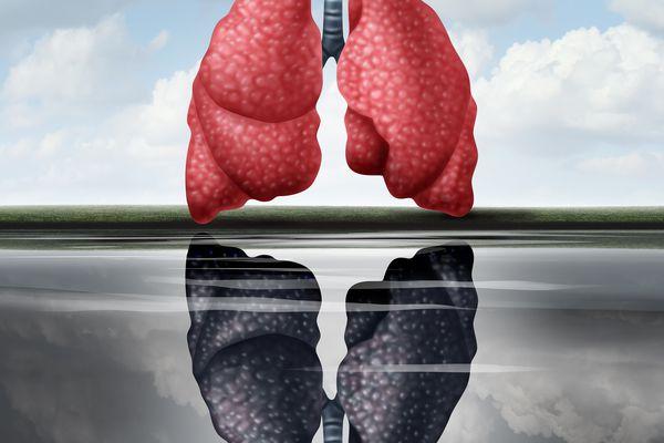Black lungs illustrating black lung disease