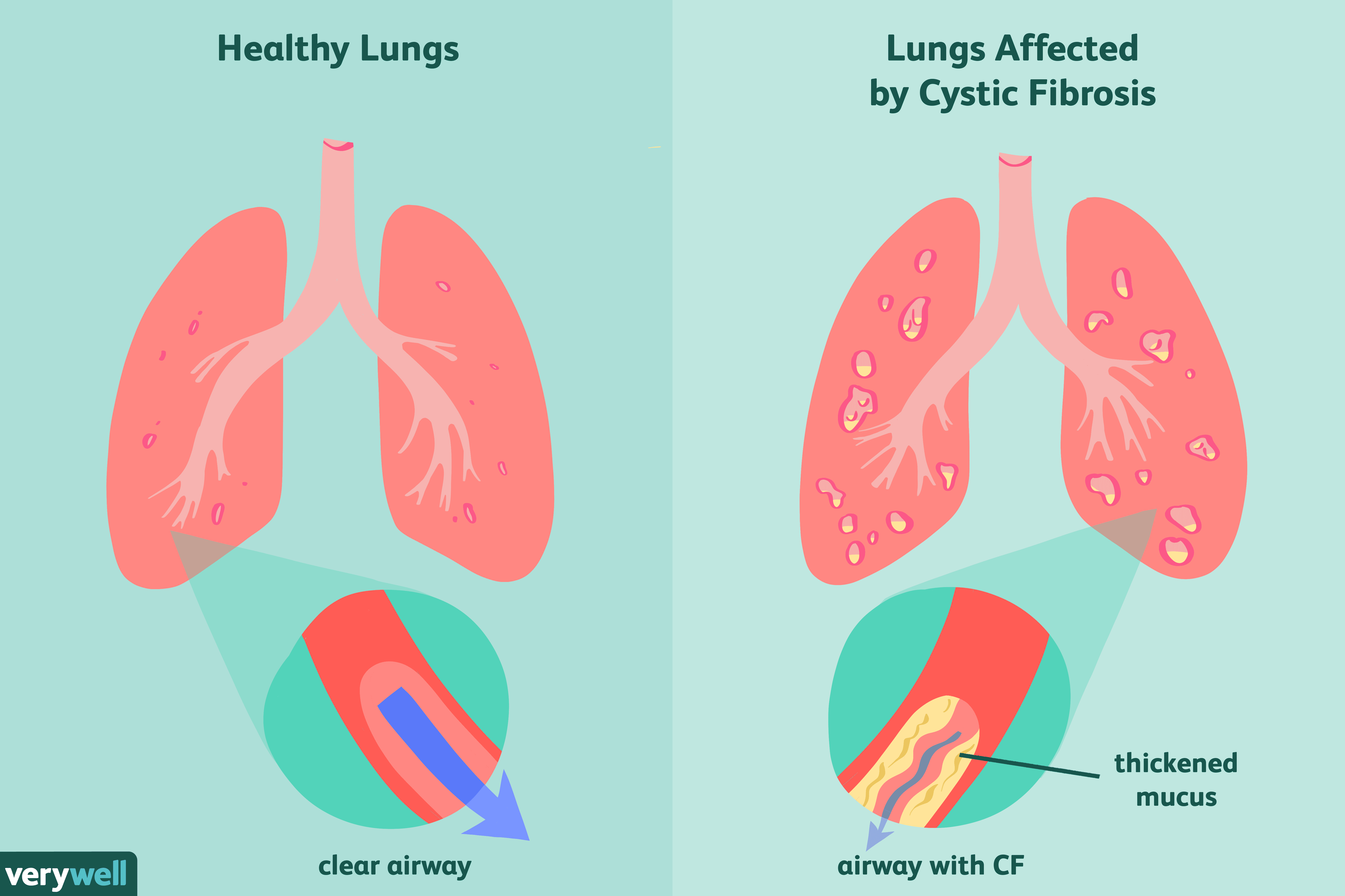Cystic Fibrosis (CF): Overview and More