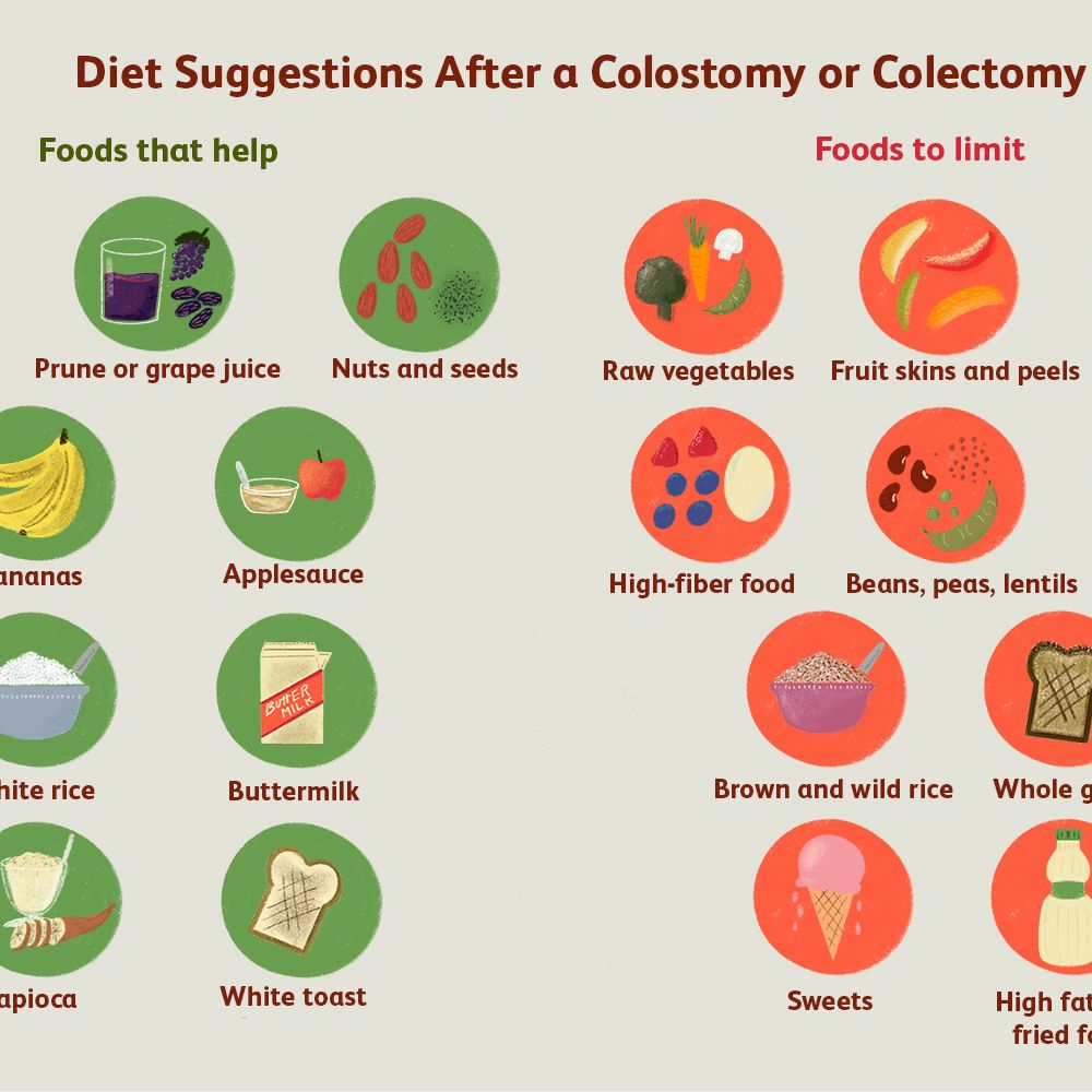 long term diet after total colectomy
