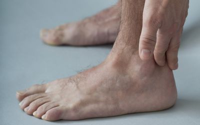 High Arched Feet Causes, Diagnosis, and Treatment