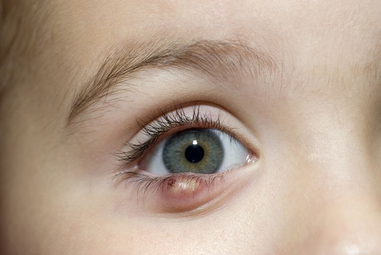 Stye or chalazion on a child's eye