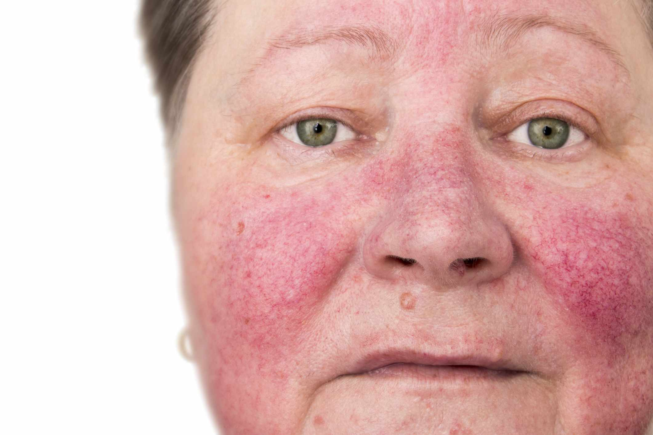 Person with rosacea, red skin on face