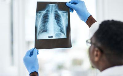 Doctor examining chest X-ray