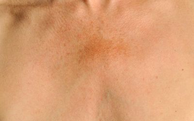 Dark Spots Causes Diagnosis And Treatment