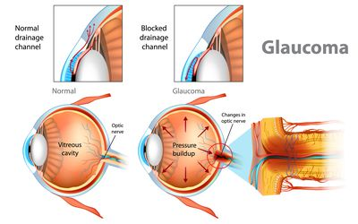 Diagrams of how glaucoma occurs in the eye