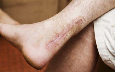 Achilles' tendon scar after surgery.