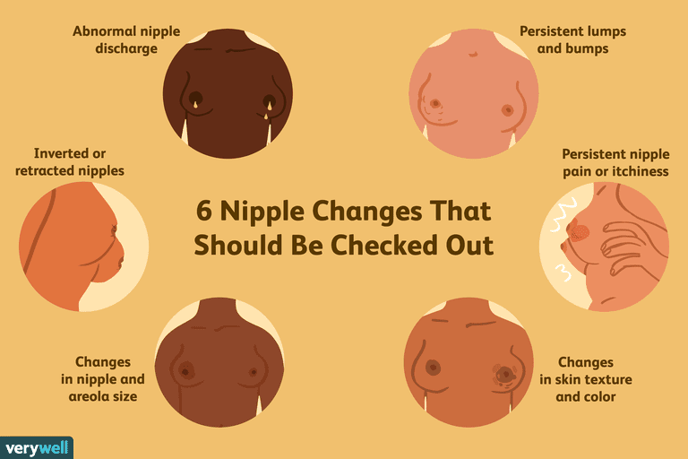 nipple changes