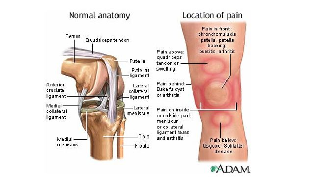 What Is The Patellofemoral Joint