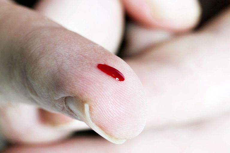 Close up view of a drop of blood on a finger. This could be accidental or the result of a medical finger prick for a blood test.