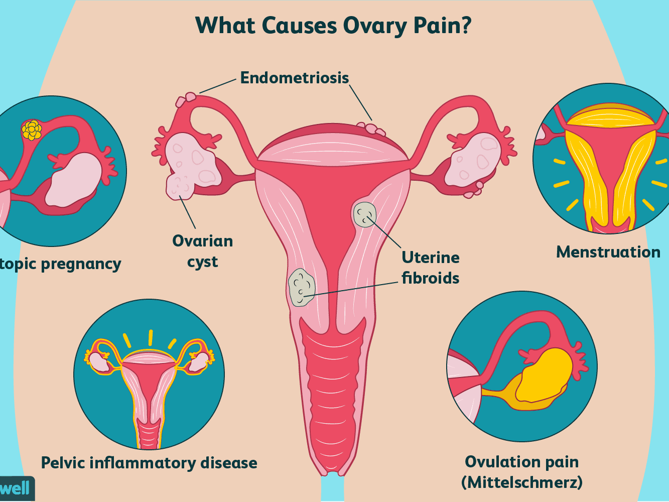 Ovary Pain Causes Treatment And When To See A Doctor