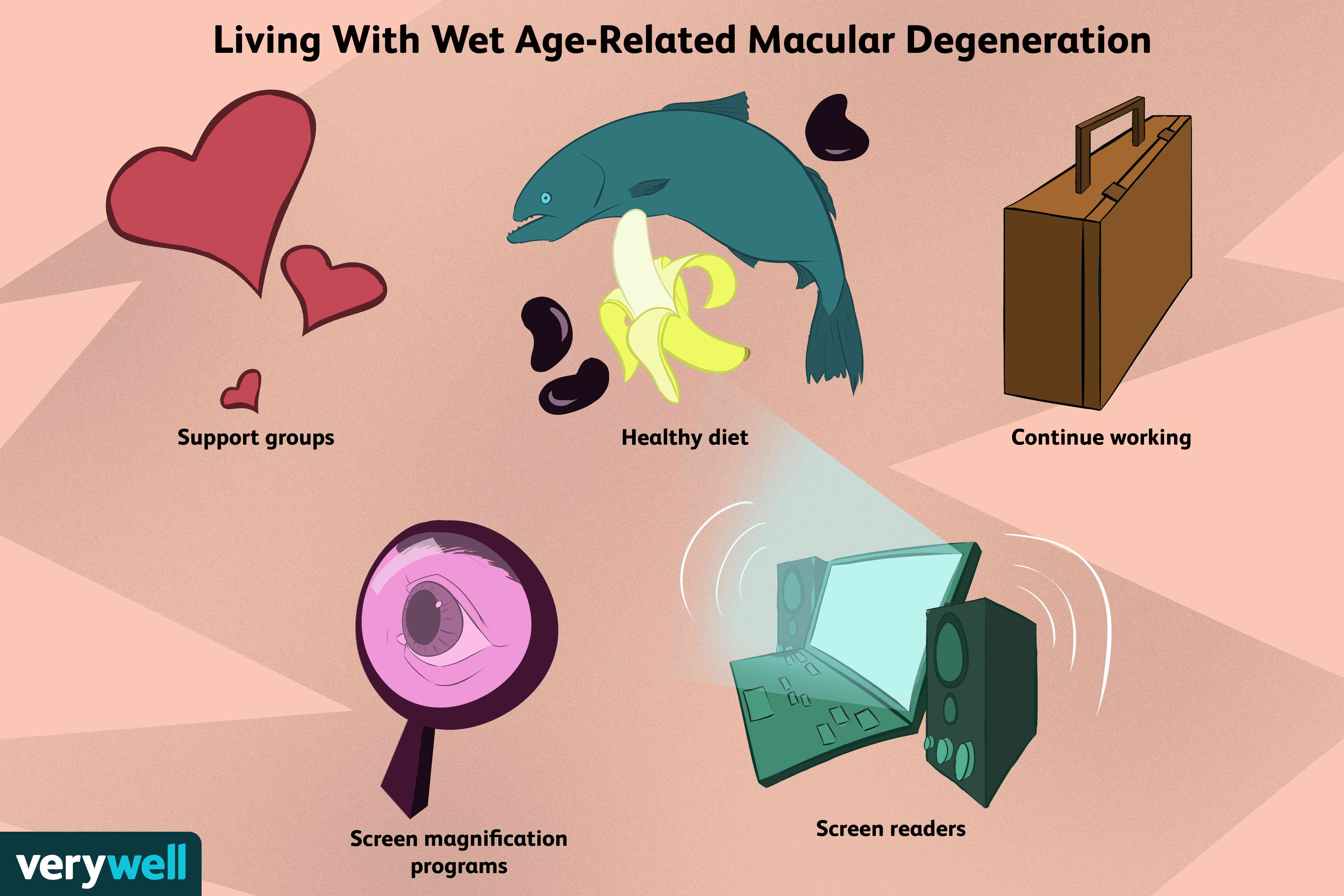 living with wet age-related macular degeneration