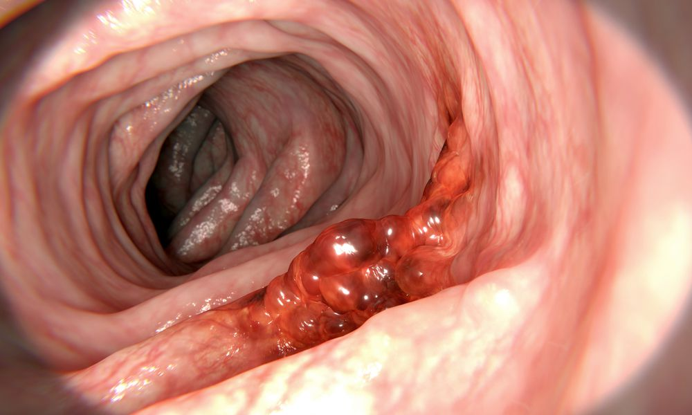 Colon cancer, illustration