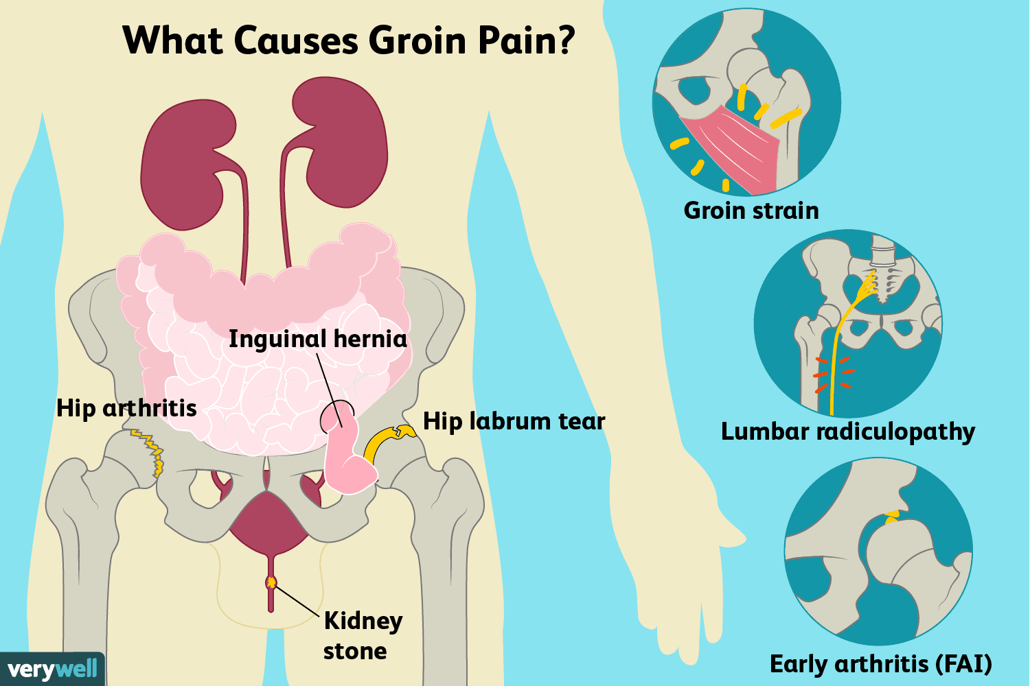 Groin Pain: Causes, Treatment, and When to See a Doctor