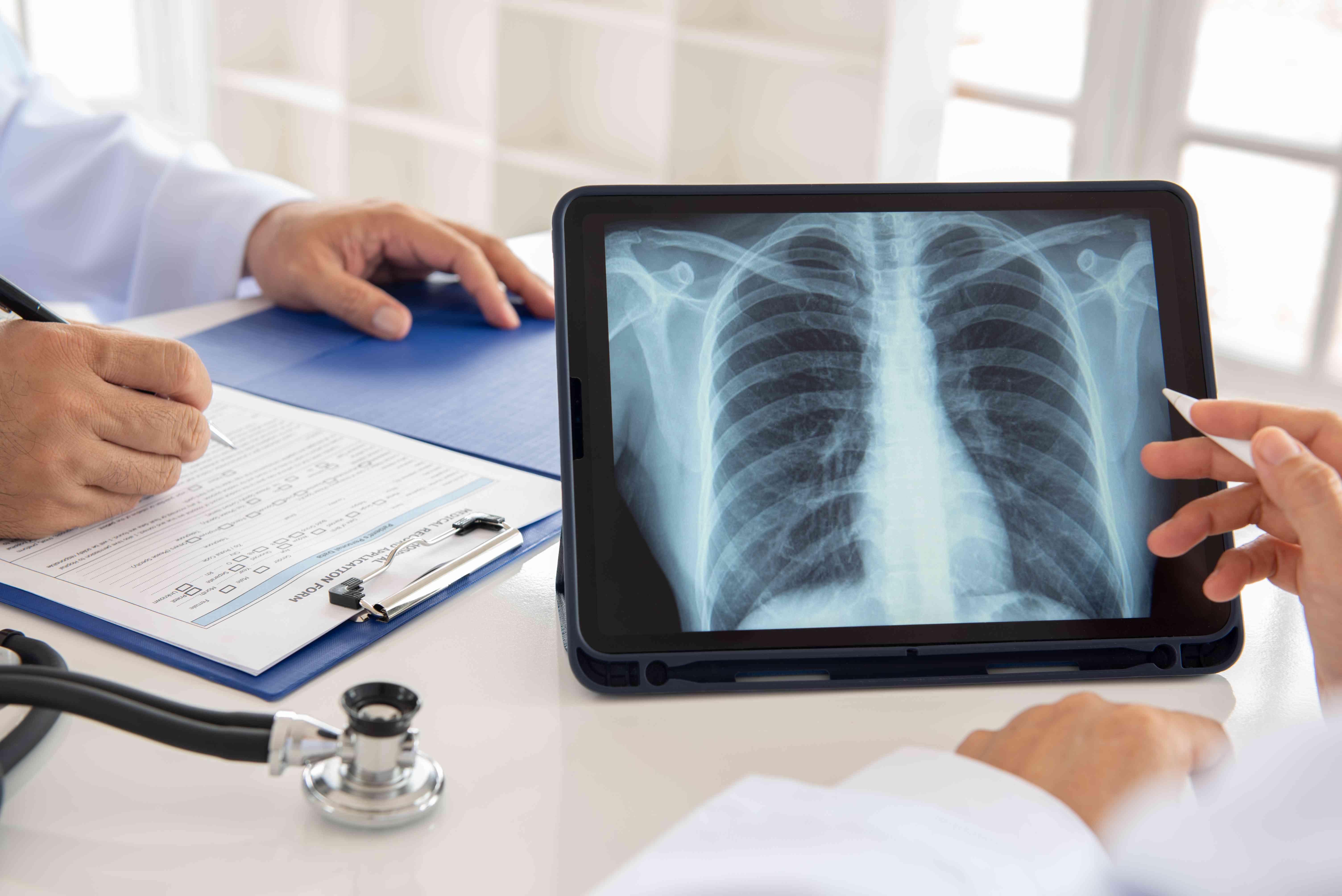doctor team x-ray