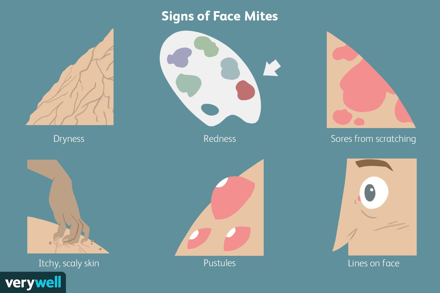 Signs of Face Mites