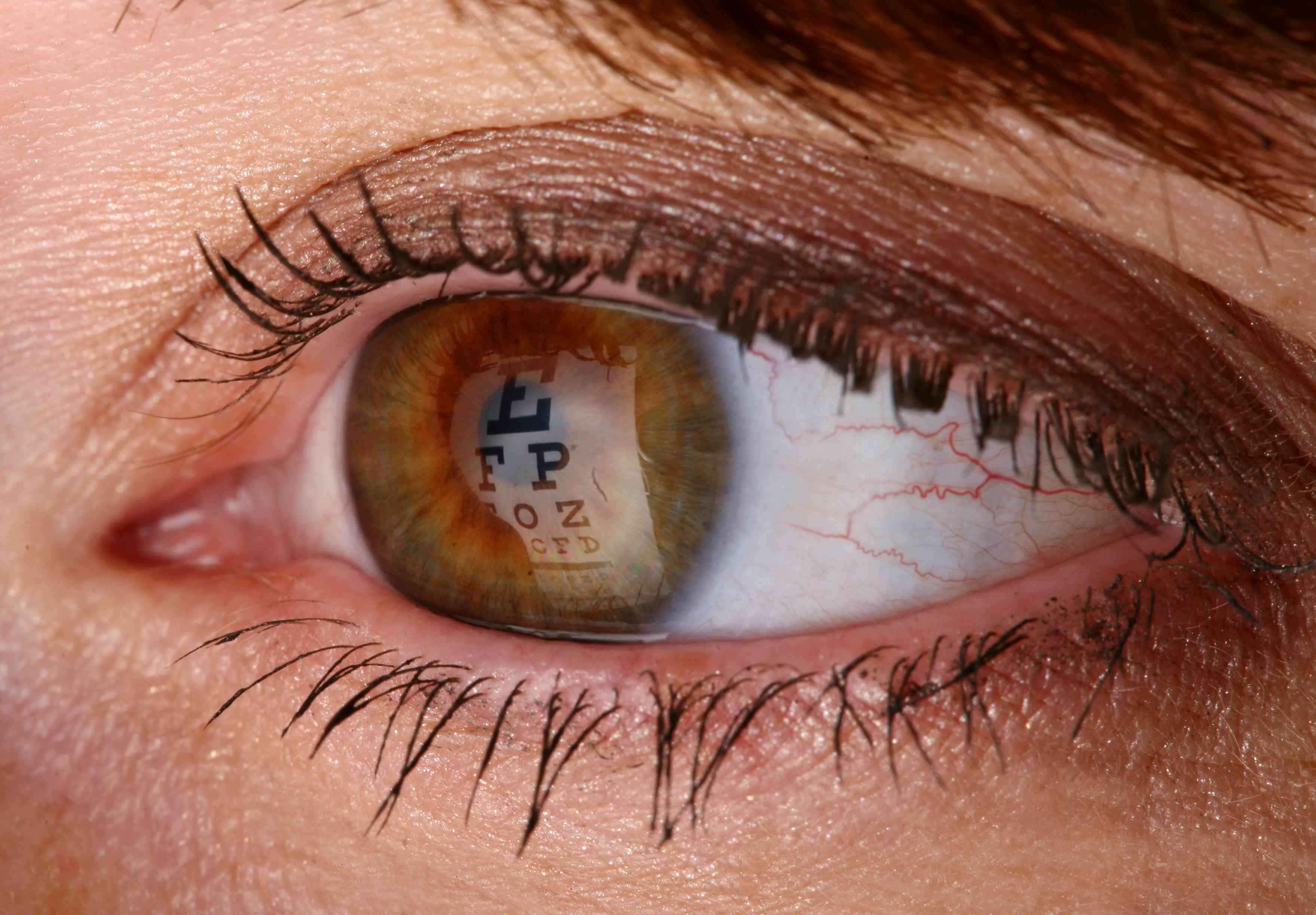 Close up of an eye with an eye chart reflecting in it