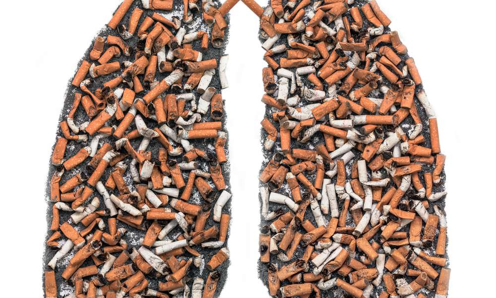 cigarettes filling the lungs illustrating the stigma of lung cancer