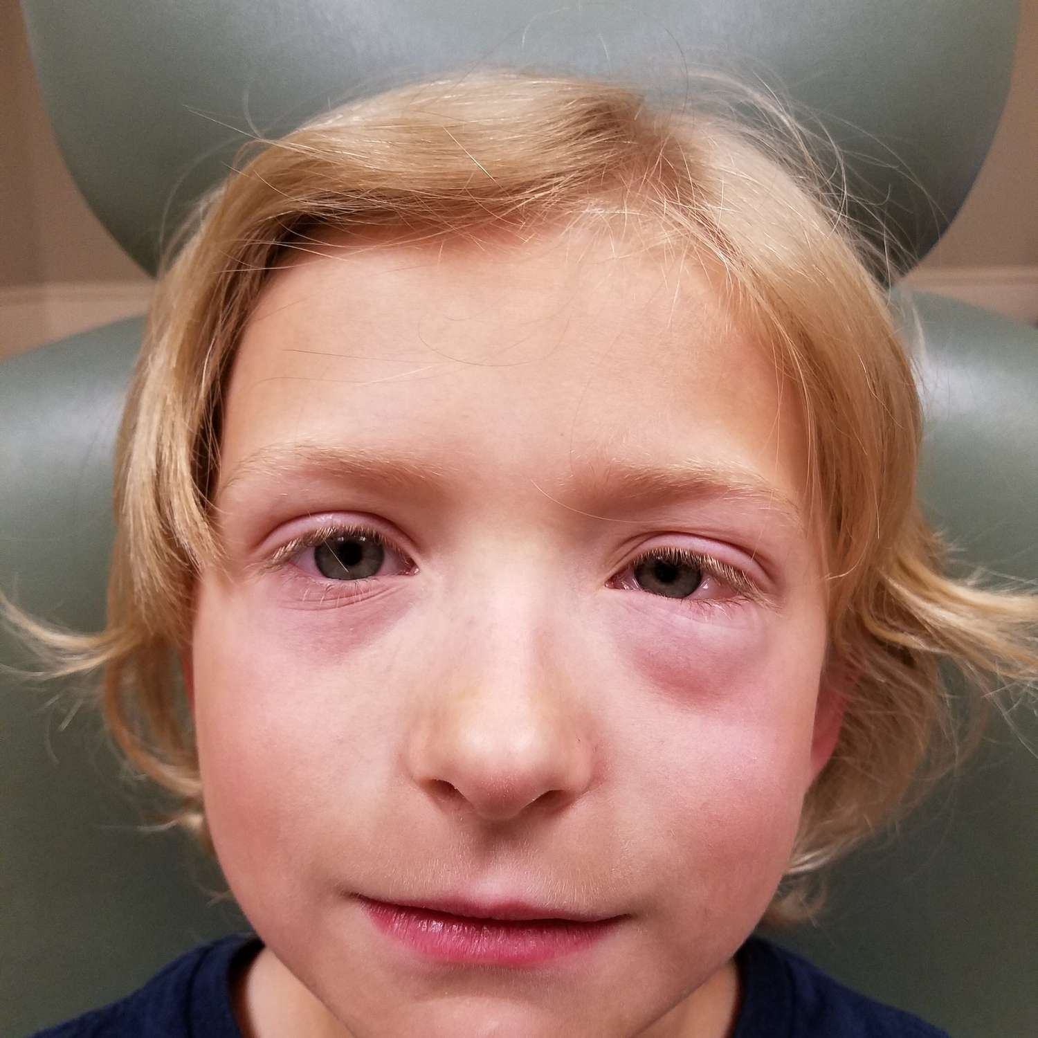 Close-up portrait of boy with eye allergies.