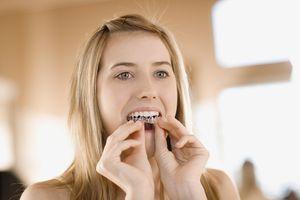 Teenage girl whitening teeth