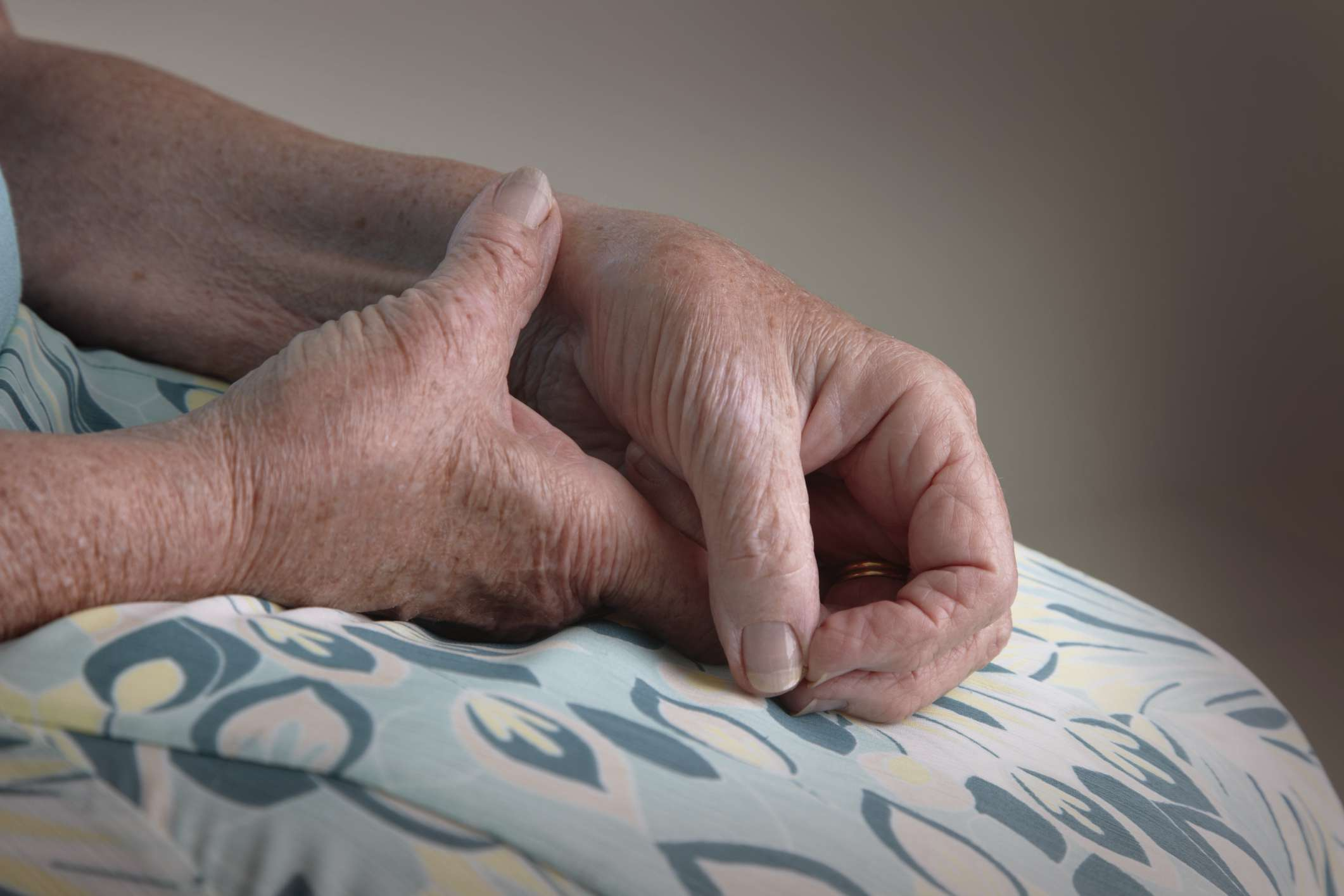 Woman's hands with arthritis