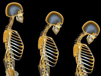 xray illustration of Osteoporosis progression