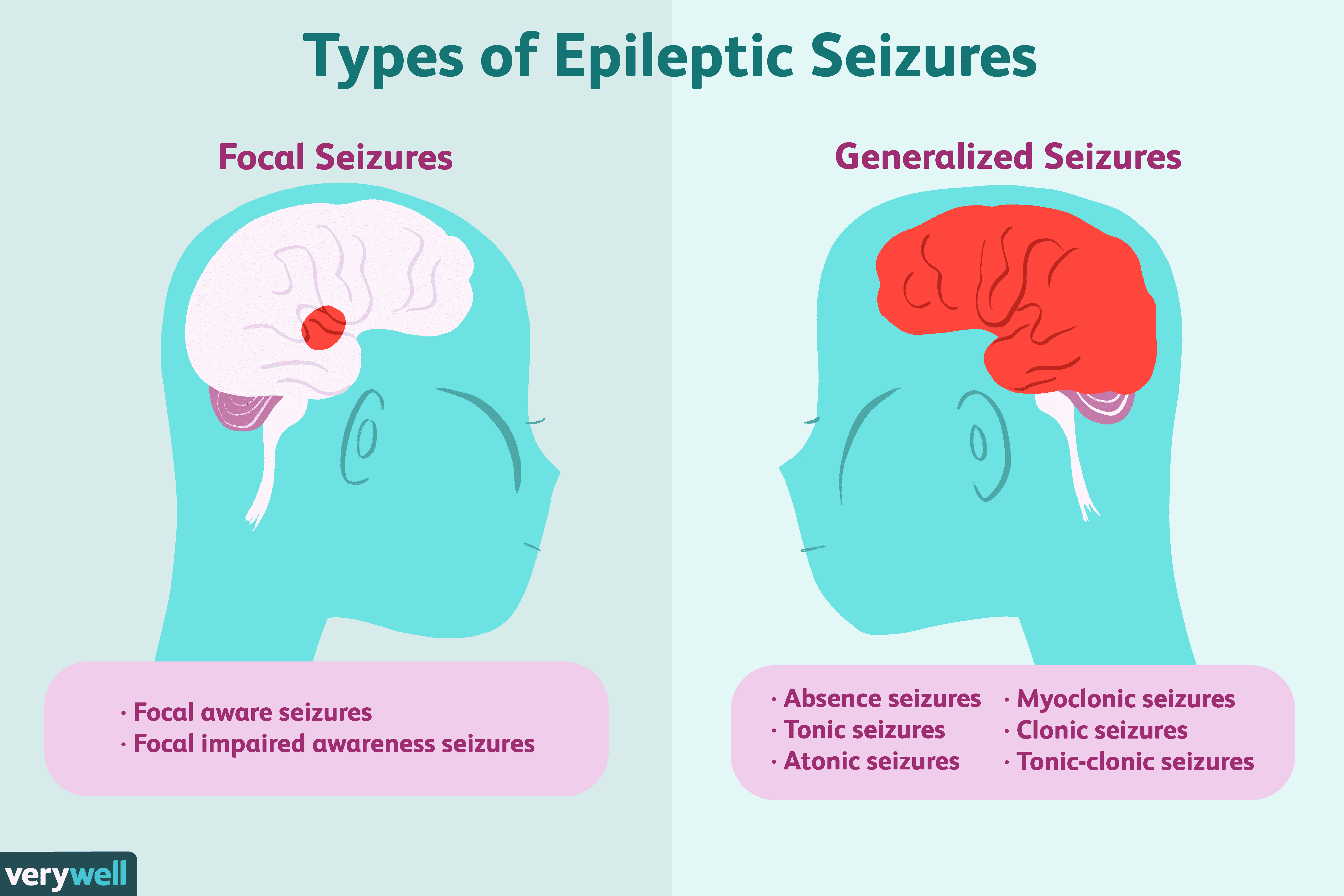 Epilepsy Symptoms Causes Diagnosis Treatment And Coping