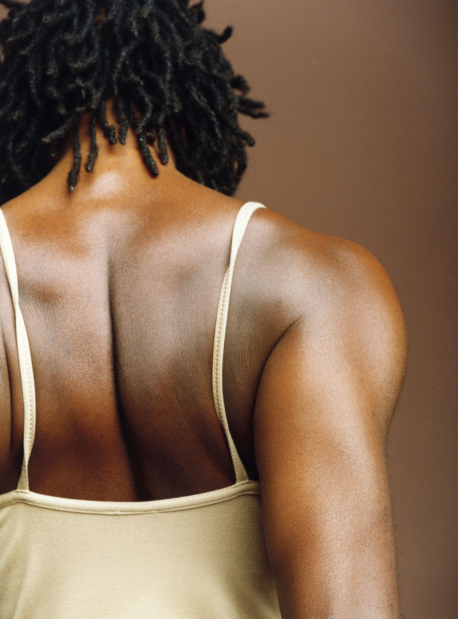 Periscapular Bursitis Treatments