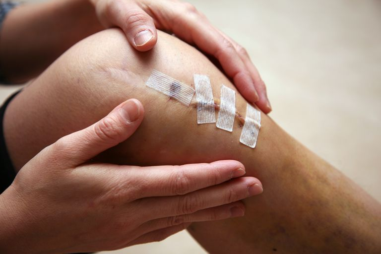 Athletic invasive knee surgery, repairing ligaments