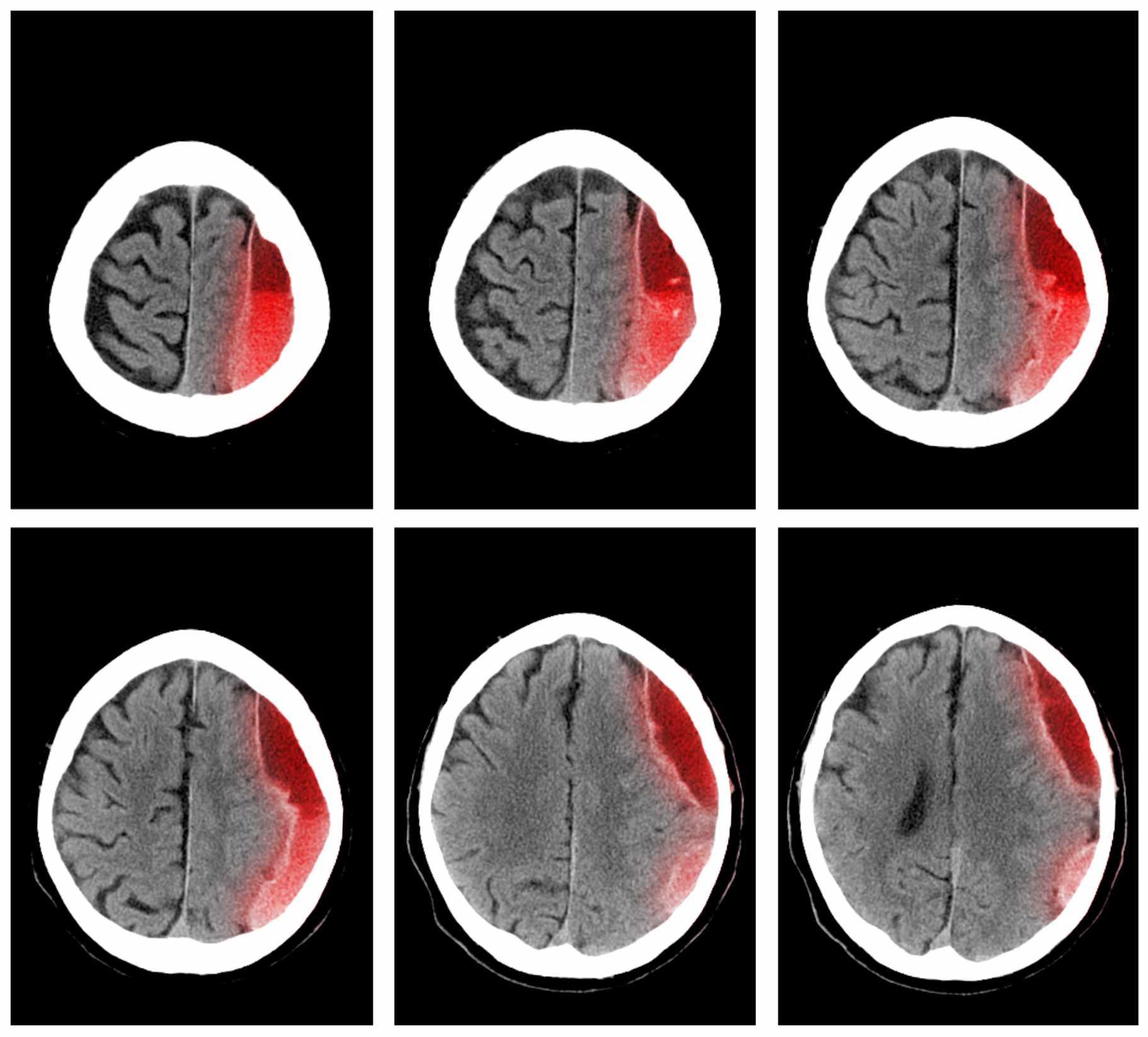 Subdural Hematoma Brain Scans