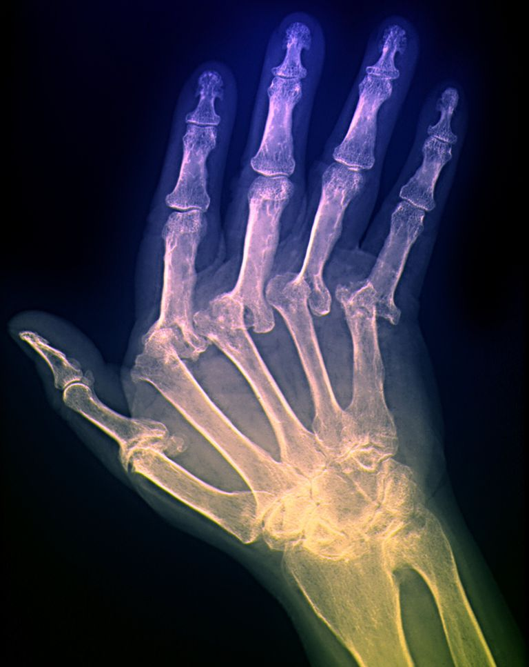 x ray of a hand with arthritis showing crooked joints
