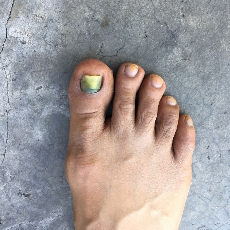 Toenail Disorders During Chemotherapy: Prevention and Care