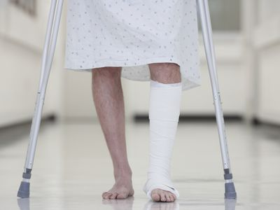 ankle fracture treatment