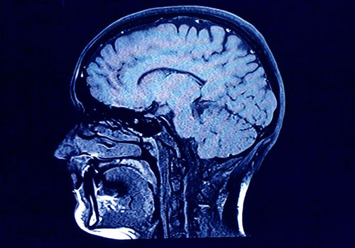 MRI of a person's brain