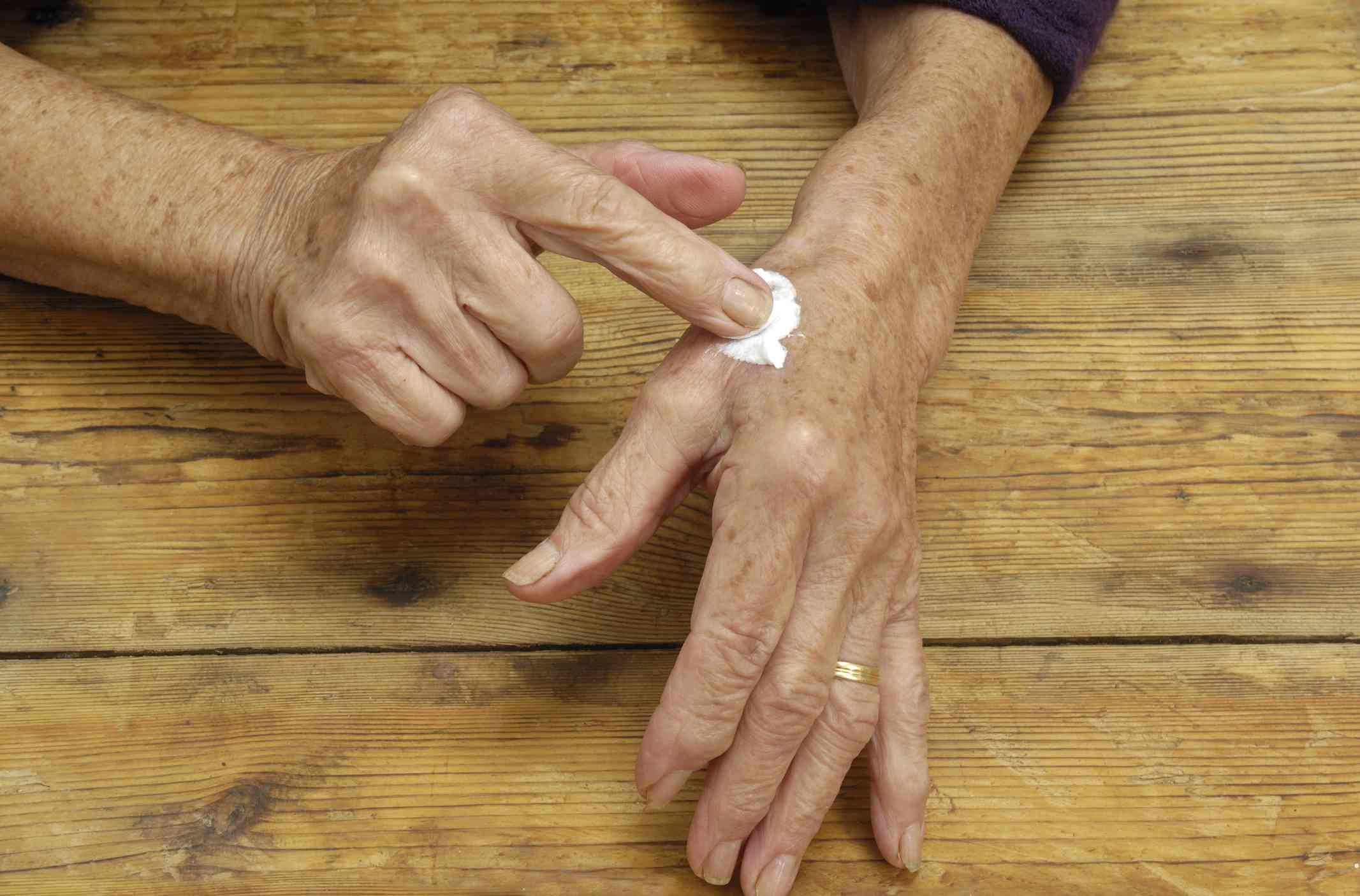 Applying Zostrix capsaicin cream to hand