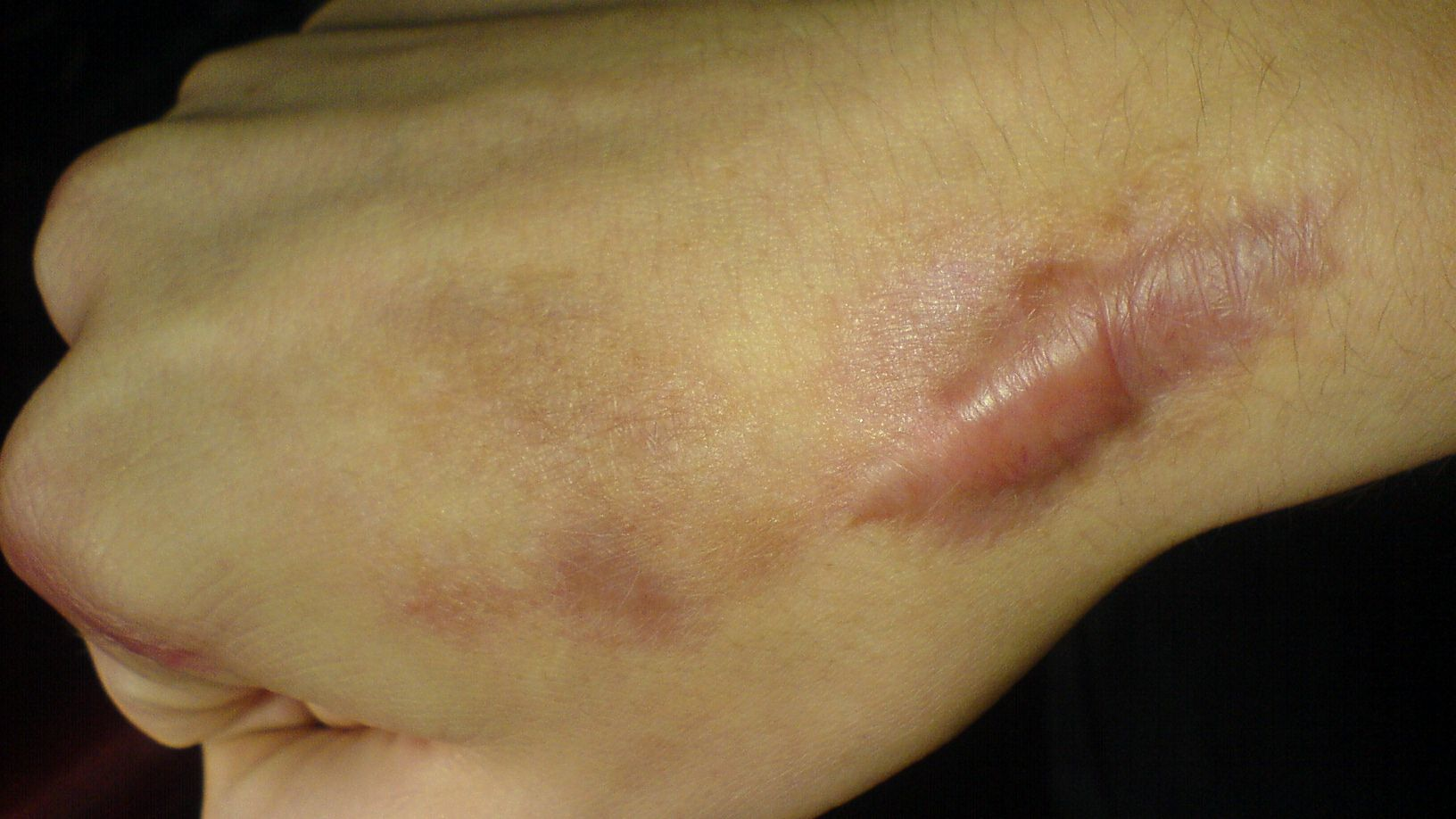 What Are The Causes Of Keloid Scars