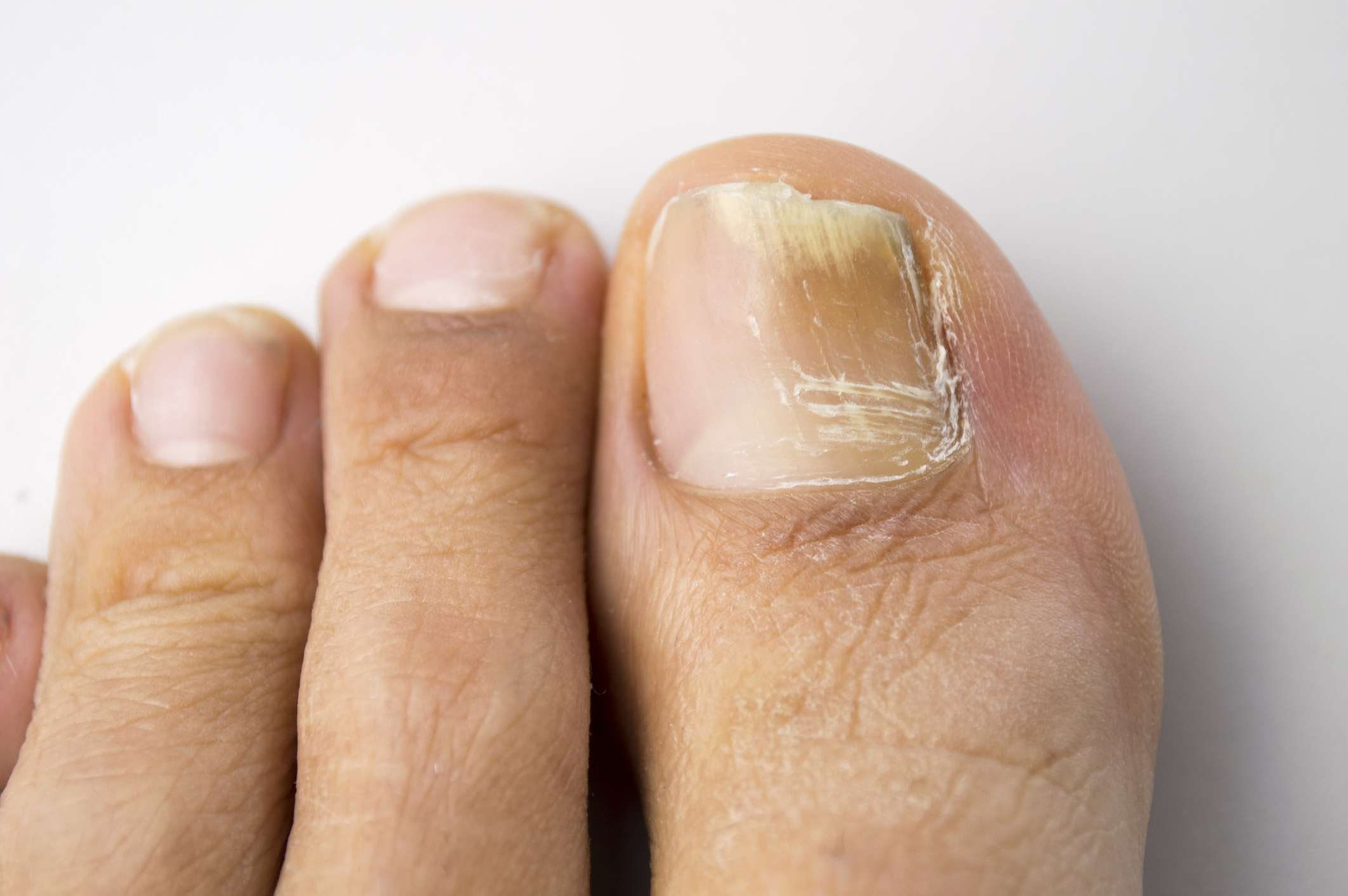 Image result for Top Reasons Why You Need To Find A Toenail Fungus Cure