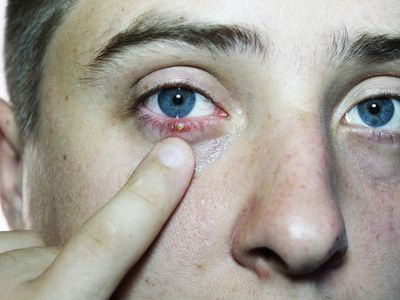For Stye Treatment article