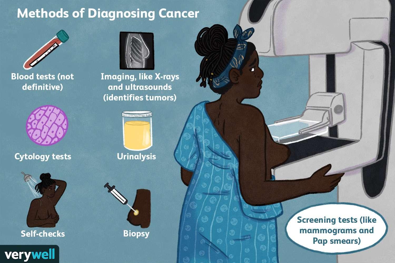 methods of diagnosing cancer