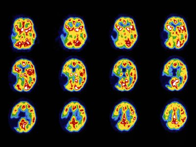 Pet scans of the brain of a stroke patient