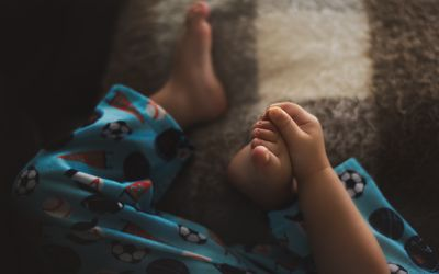 Toddler Holds Foot and Toes after Hand, Foot, and Mouth Disease
