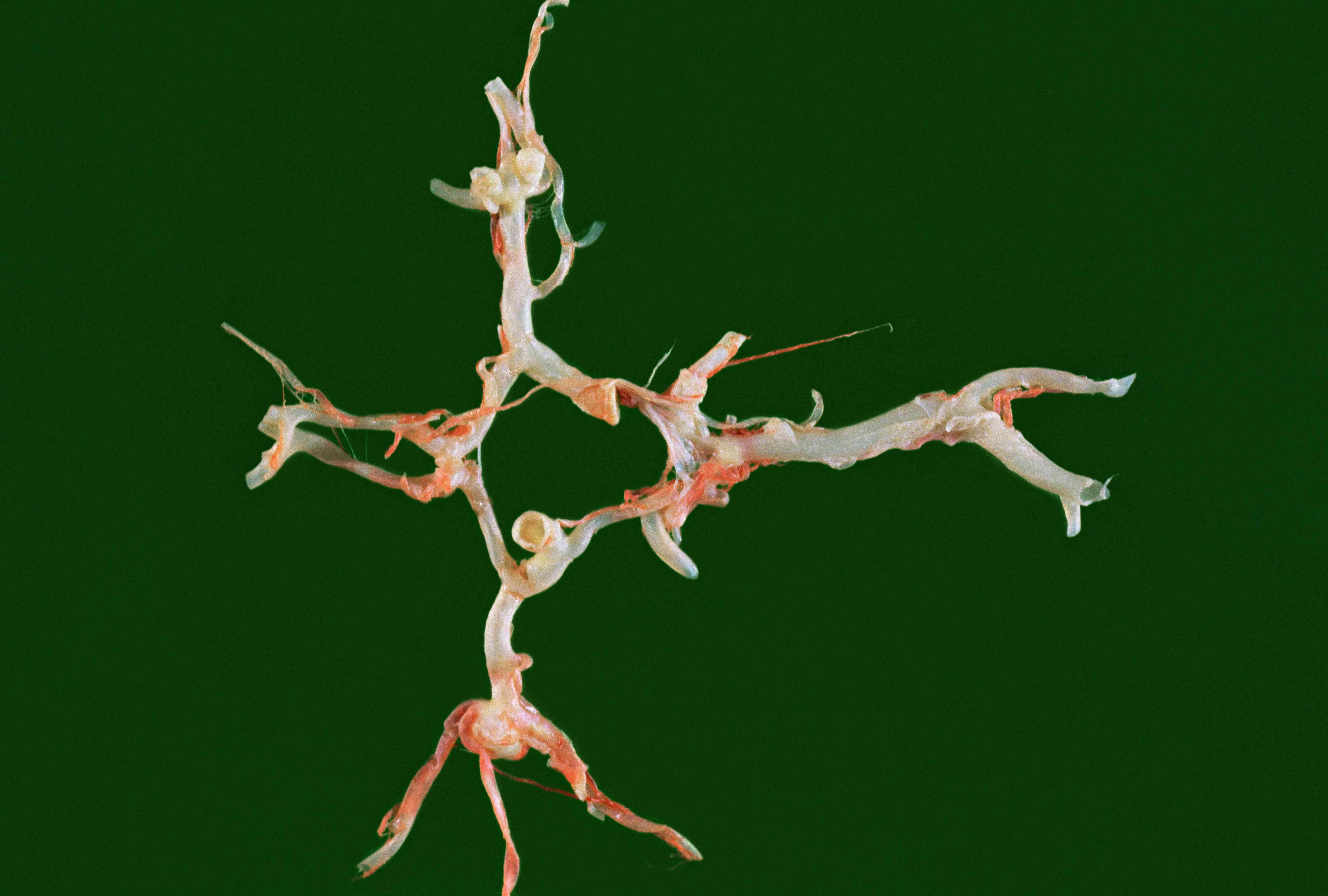 Berry aneurysm illustration