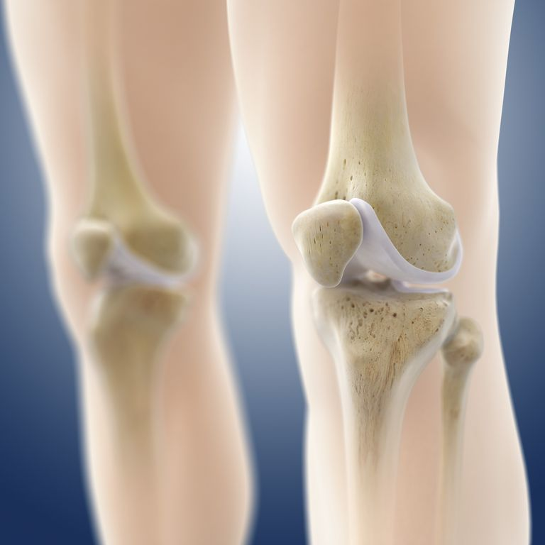 Osteochondritis Dissecans Ocd Of The Knee