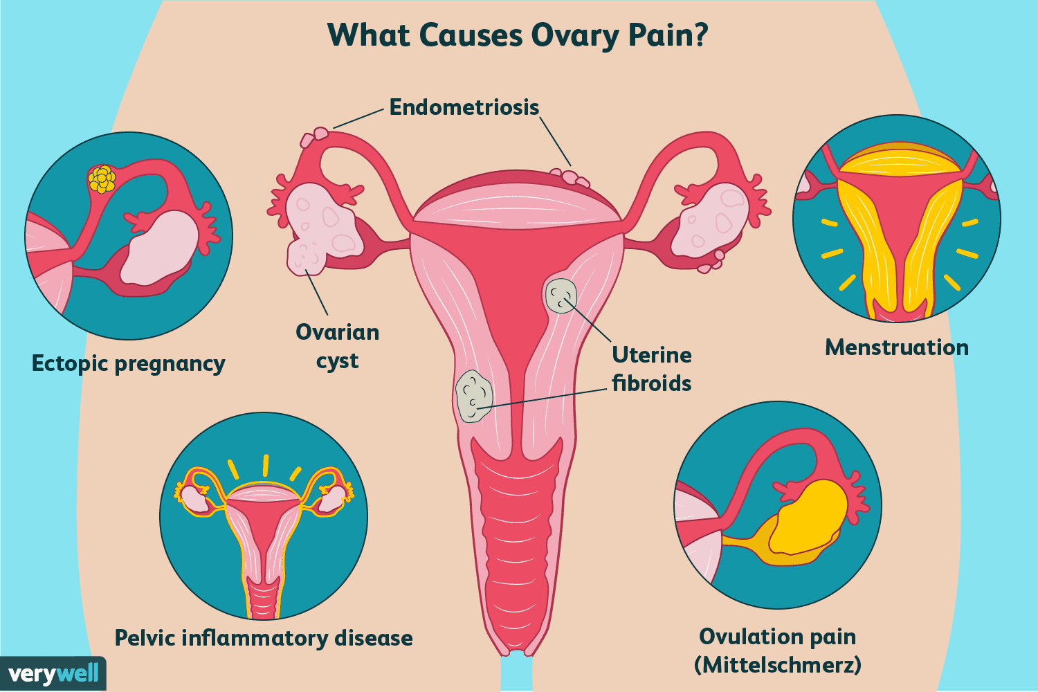 Ovary Pain: Causes, Treatment, and When to See a Doctor