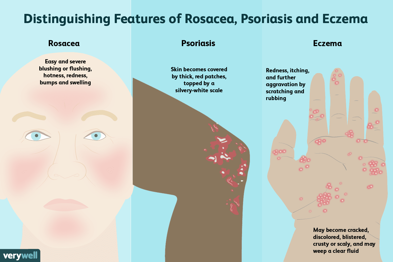 Learn If You Have Rosacea, Psoriasis, or Eczema