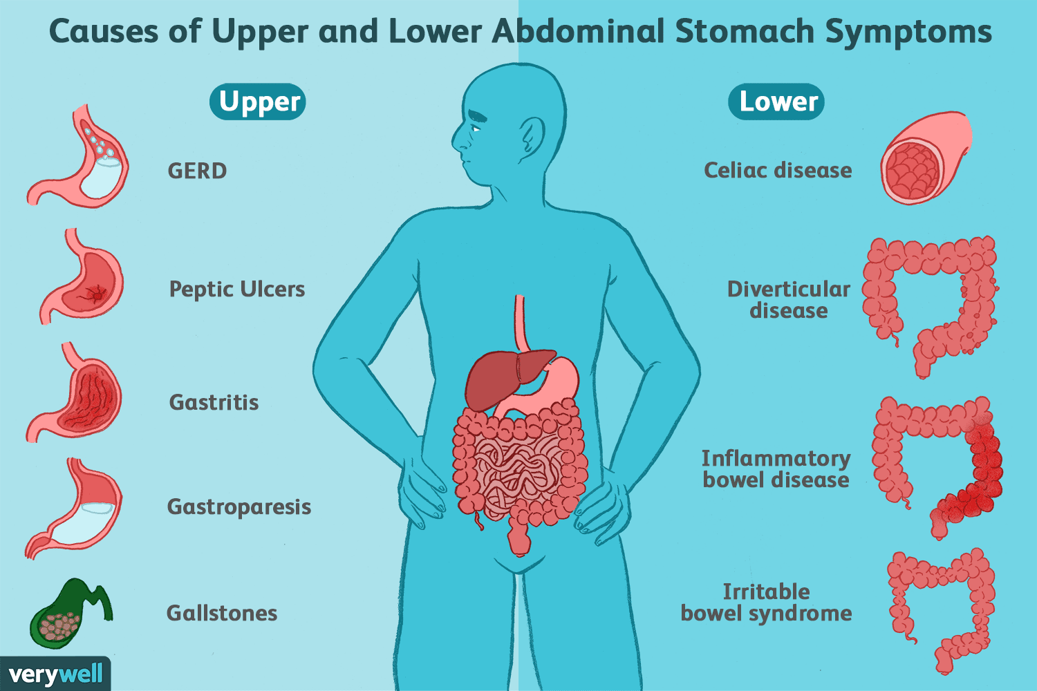 Diet Not Connected To Gi Problems In >> Symptoms Of Common Stomach And Digestive Problems