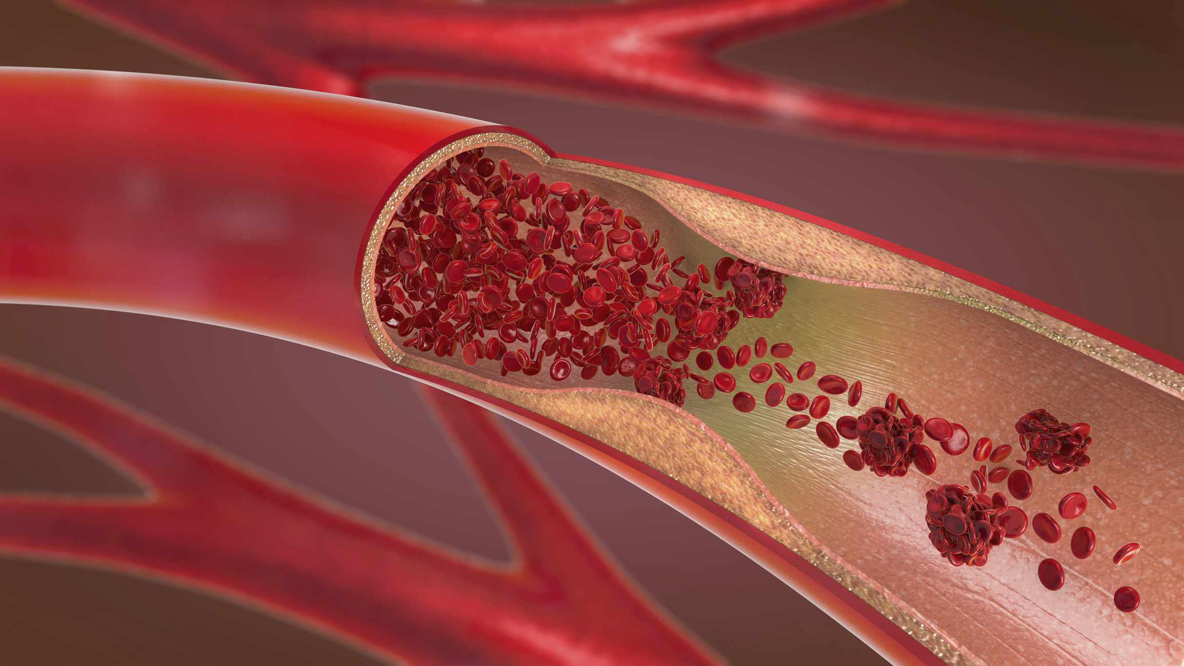 Disease inside blood vessels can have effects on health