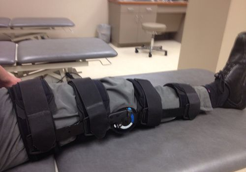 A knee Bledsoe brace.