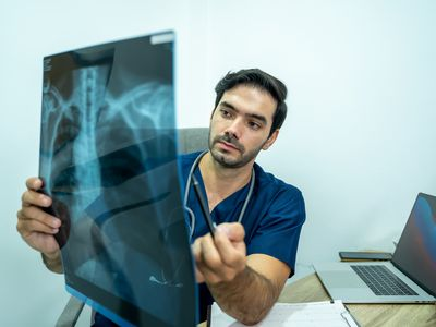 Doctor reviewing x-ray