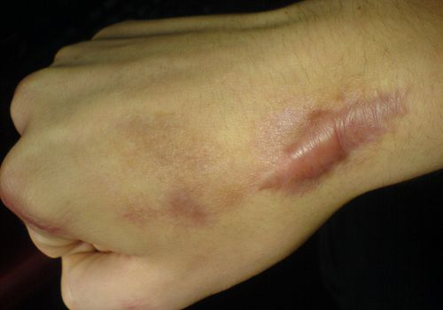 Keloid scar on wrist